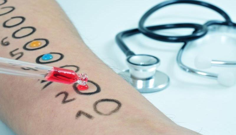 szegolowe-badania-alergiczne-w-centrum-medycznym-TriMedic